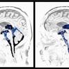 脳脊髄液の調整についての今後。
