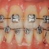 30歳 歯列矯正&埋伏歯を引張り出す 〜開始まで〜
