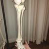 脚のだるさは脛骨、腓骨の骨の歪みが原因となっていた。。