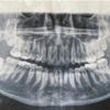 本日、全身麻酔で親知らず4本抜歯