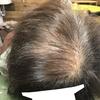 髪の毛が細くなりボリュームなくなった女性の薄毛対策に「コンビニつけ毛」はオススメです。