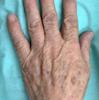 手のシミもフォトフェイシャル(m22)で治療できます