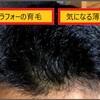 薄毛が気になるアラフォー、スカルプDで育毛に挑戦中