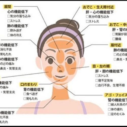 顔ニキビの位置、場所でわかる健康状態と体の調子で治し方はそれぞれ違う!?