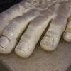 爪水虫の症状と治療方法は?