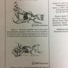 頭蓋下顎痛と機能障害に対する筋筋膜リリース