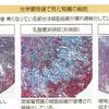 慢性腎臓病の悪化を抑制するFK-23とLFK乳酸菌