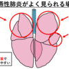【犬猫の誤嚥性肺炎】