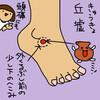 胆経(GB)40 丘墟(きゅうきょ)