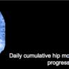 変形性股関節症の悪化を予測する新しい指標を知っておこう