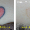 胸のハート型カラータトゥーを薄くしています。
