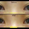 垂れ目形成(グラマラスライン・下眼瞼下制術)でつり目を矯正