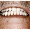 義歯用材料のツボ⑦蝋義歯試適時の検査項目