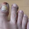 汗疱状湿疹(11)