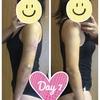 二の腕の脂肪吸引【術後7日目】比較写真あり