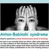 ヒトは虚構と現実の区別が苦手である/アントン症候群、その他の事例
