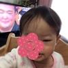 1歳3ヶ月 娘 突然、目が腫れる。鼻水が影響?
