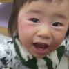 【アトピー③】周囲の目やアドバイスの対処法