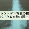 胃のレントゲン写真の撮影でバリウムを飲む理由
