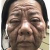 症例:46歳女性 顔貌変化