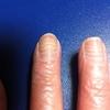 抗がん剤治療8クールで爪はガタガタに! 恐るべし「赤い悪魔」の抗がん剤