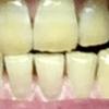 歯が白くなる歯磨きを使ってみる アパガード プレミオ プレミアムタイプ  18日目