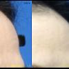 美額形成(こめかみヒアルロン酸注入)をしました。こめかみのくぼみを和らげます。