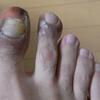 汗疱状湿疹(9)