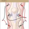 鍼治療は疼痛コントロールに有用か
