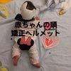 赤ちゃんの頭の形が悪い! アメリカでのヘルメット治療レポート