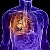 非小細胞肺がん