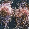 前立腺ガンの約40%は進行ガン:イギリスで猛威を振るう!  (BBC-Health, April 8, 2018)