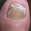 足の爪の変形(水虫ではない?)