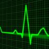 モニター心電図は何を見れば良いの?3つの見るべきポイント
