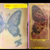 圧倒的症例数!ピコレーザー(エンライトン)でタトゥーを除去をしています。 1回治療後、レーザー後2日目の写真です。ディスクライブの効果