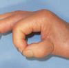 RA母指の再建法の決定にNalebuff分類は役に立たない?