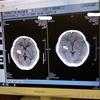 2021年の正月に、脳出血で倒れて緊急入院。
