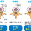 腰椎椎間板ヘルニアと脊柱管狭窄症の鑑別