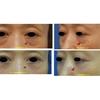 目の下のクマ治療👀切らない脱脂+コンデンスリッチ・ナノ治療