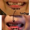 歯科矯正バイオブロック始めて3週間〜下のは1本分くらい広がりました〜