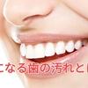気になる歯の汚れどう取る?