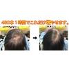 薄毛で悩むお母さんを元気にする「コンビニつけ毛」は、親孝行の手助けをします。