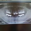 噛むと鈍い痛みの歯痛!歯根膜炎!根幹治療!