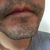【毛34】日焼け克服後のひげ医療脱毛。詳細経過記録してみます、ヤグレーザーってやっぱ痛いね、心斎橋ゴリラクリニック