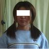 椎間板ヘルニアの激痛を克服した症例体験談