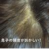 息子の頭皮の一部分に脂漏性皮膚炎の症状が出た