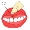 前歯と唇の間の筋みたいなやつが切れて大惨事になった話