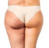 セルライトの落とし方を1年で15kg痩せたダイエッターが解説