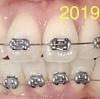 フィリピンで歯列矯正13週目。