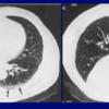 健常者でも肺底部に出現するすりガラス影(重力効果)